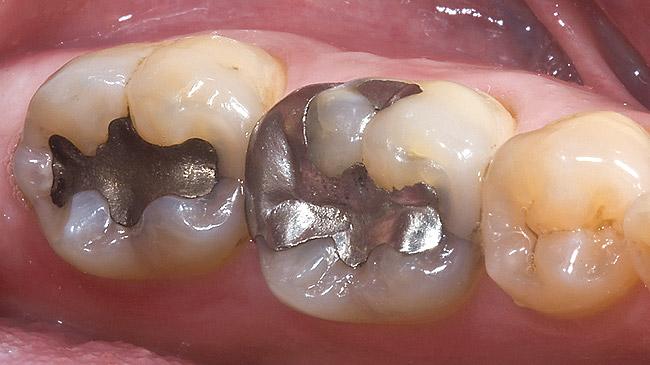 جیوه آمالگام دندان